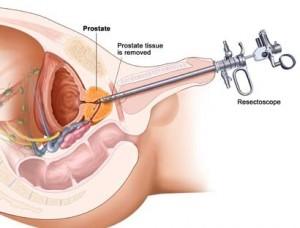 Chirurgia IPB